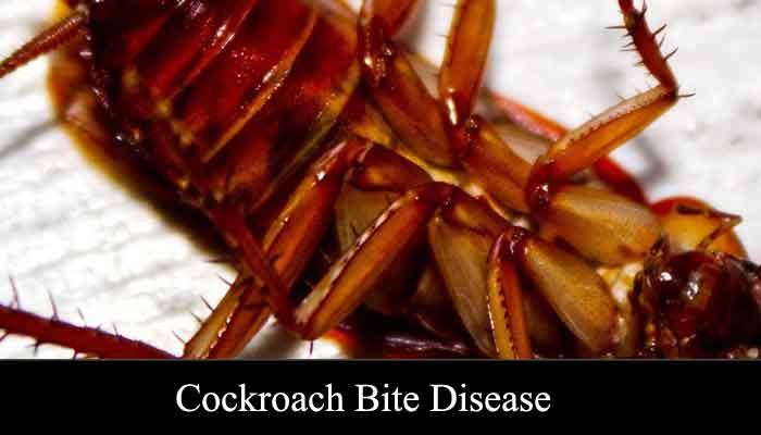 cockroach bite disease